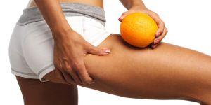 Cellulite-Therapie